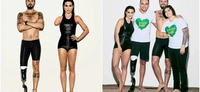 Internet went nuts about photoshoot transforming able-bodied models into amputees to promote Paralympics