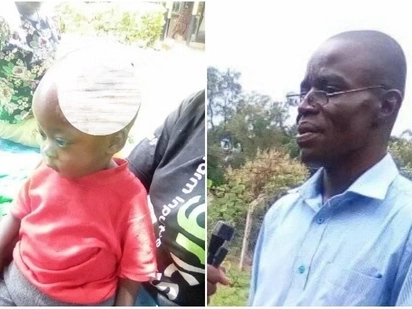 Malava hospital on the spot after injection leaves baby with rotting head days after KNH operation blunder