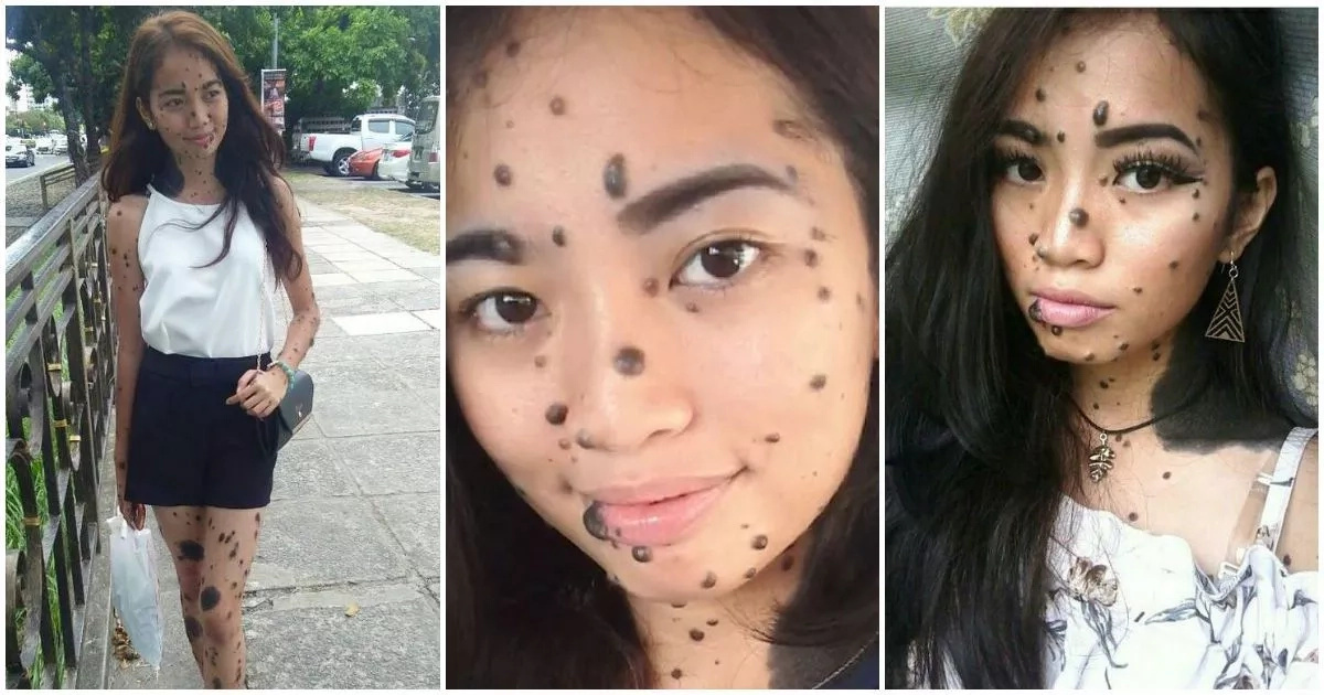 Young woman who was bullied for her mole-covered face has a chance of becoming Miss Universe