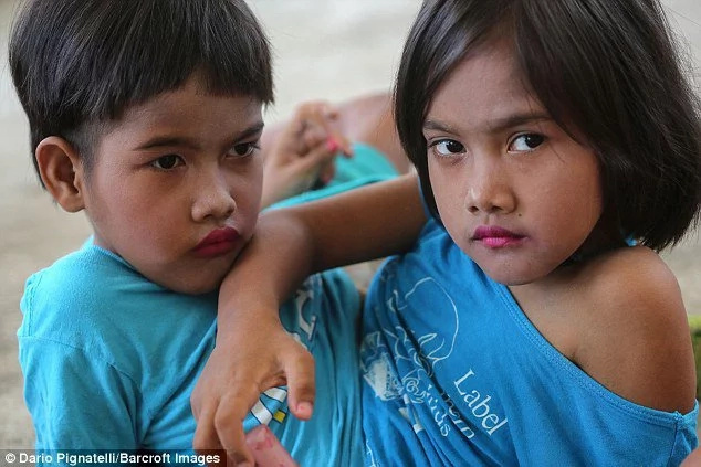 See conjoined sisters who refuse being separated