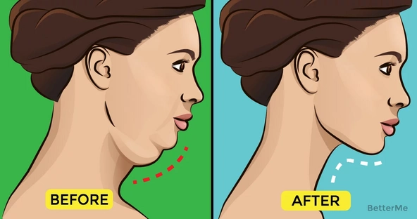 5 exercises to get rid of stubborn double chin