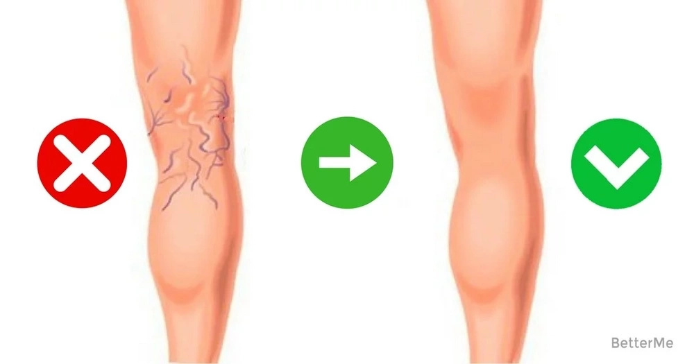 7 Easy Ways to Make Varicose Veins Fade
