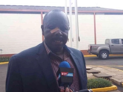Police respond to Ruto teargas drama, did he fool all of us?