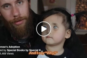 No One Wanted Baby with 'Piercing Silver Eyes.' That's When One Photo Changes Everything