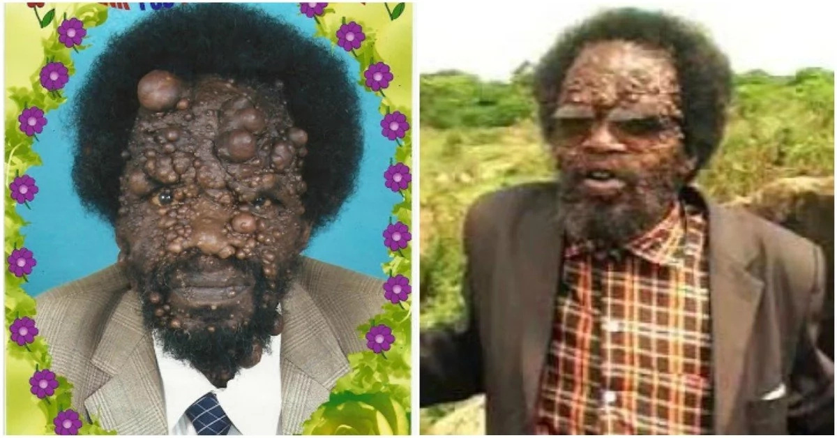 Pastor with mysterious skin disease winning people of God
