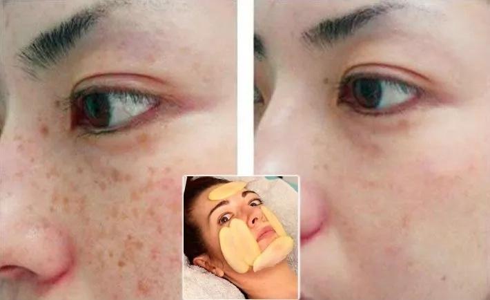 Elimina las manchas de tu rostro para siempre en tan solo 3 noches con este increíble truco