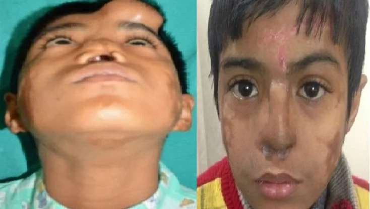Doctors grow artificial nose on boy's forehead