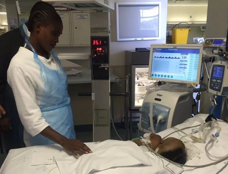 Tiny survivors! See conjoined twin girls separated in 13-hour operation by 25 specialists team (photos)