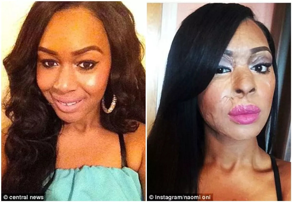 Naomi Oni, before the attack (left) and after (right)
