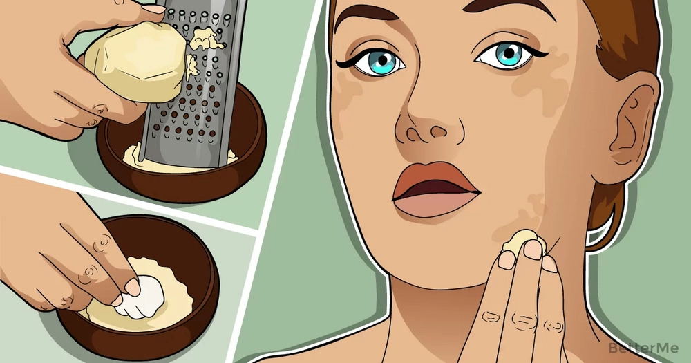 Potato juice can help you get rid of the dark spots on your face