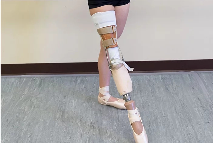 What A Story? 15 Year Ballerina Without Leg Makes An Unbelievable Recovery