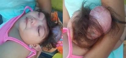 Sobrang nakakaiyak! Heartbreaking photos of dying 1-year-old Pinay girl in Mandaluyong City go viral