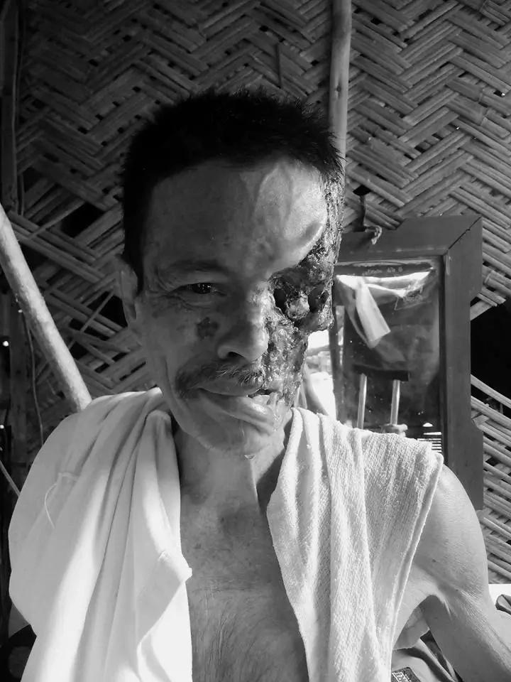 Tatay Gilbert is full of hope despite losing half of his face