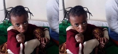 SO SAD! This is how you can HELP this little Kenyan angel live a normal