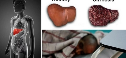 6 ORDINARY symptoms that show you may have liver disease