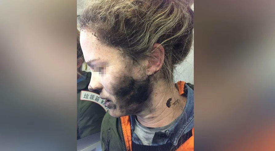 Woman's headphones EXPLODE mid-flight leaving her with facial burns (photos)