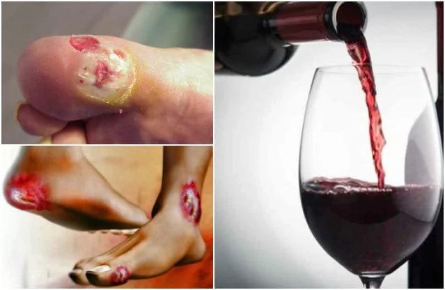 La diabetes se combate tomando vino tinto