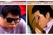 Randy Santiago reveals the heartbreaking true story behind his damaged left eye! Nakakaawa naman siya!