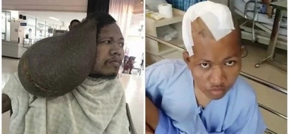 Relief! Doctors remove tumour TWICE the size of man's head (photos)
