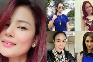 These celebs had surgeries but Shiryl Saturnino paid for it with her life. Will other celebs still go the cosmetic surgery path?