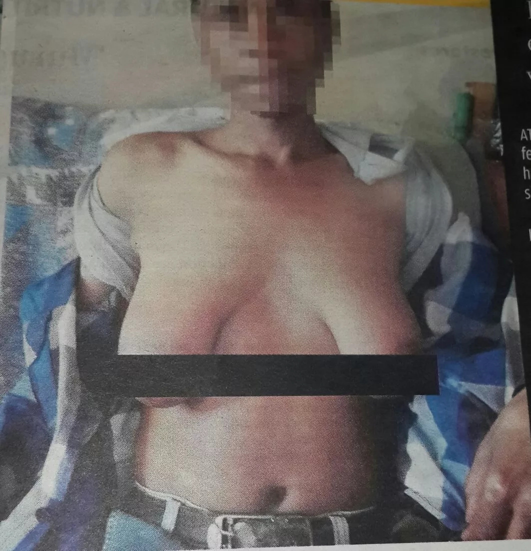 A 39-year-old man grows a pair of boobs after sleeping with neighbours wife