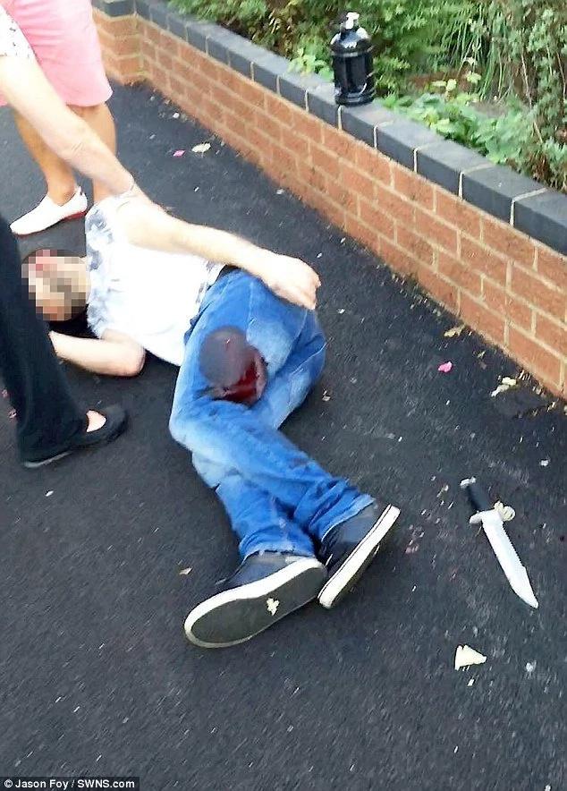 Intentó defender a una chica y quedó sangrando en el intento