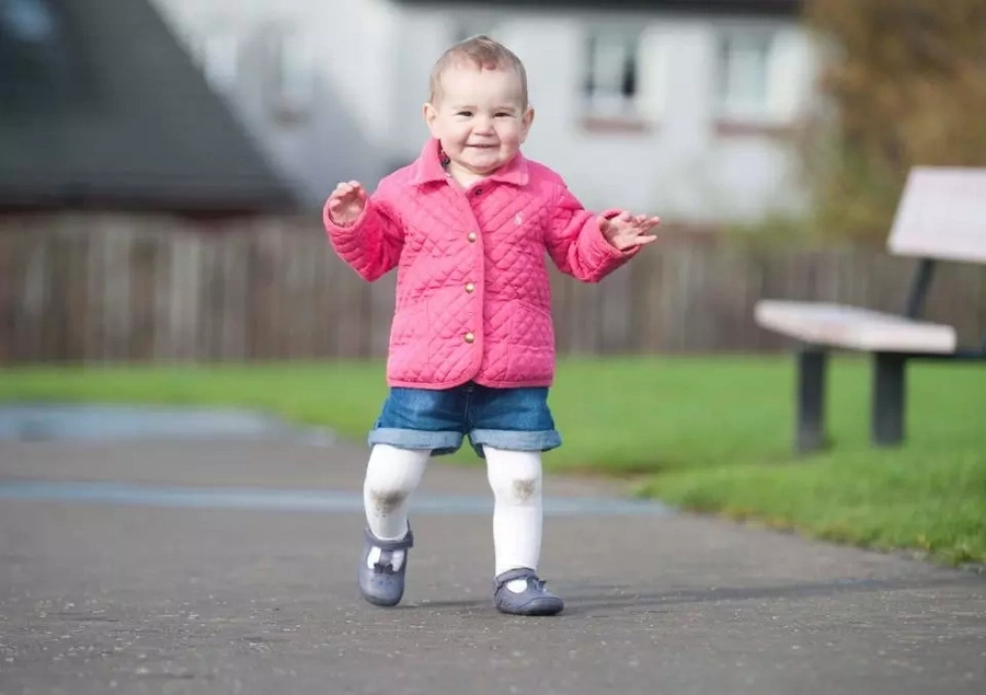 Little warrior! Toddler who was born with 4 large holes in her heart still alive parents' despite fears