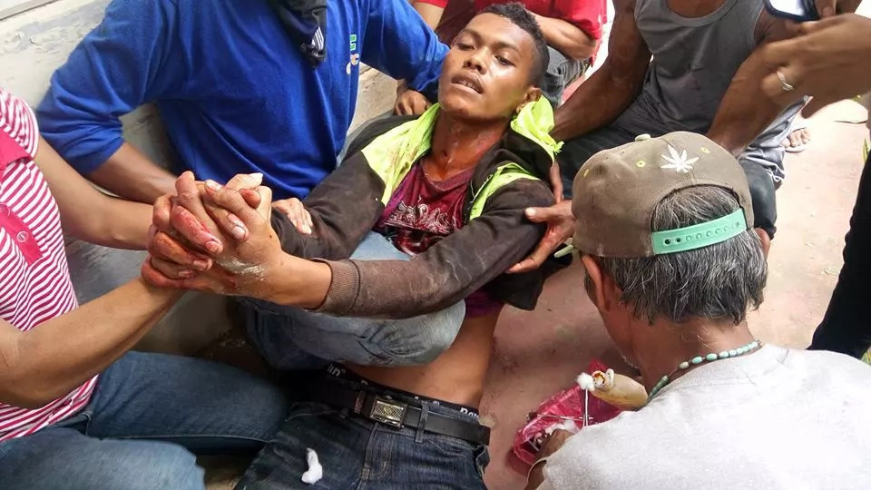3 Dead, 116 Others Wounded In Cotabato Rally