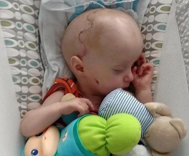 A este bebé le rompieron el cráneo para salvar su vida