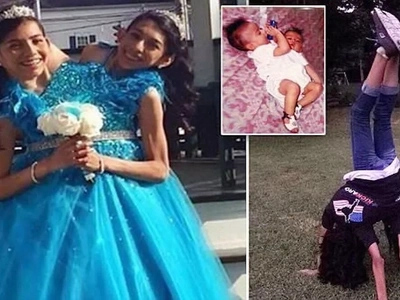 See extraordinary life of CONJOINED twins, 16, who say no to separation (photos, video)