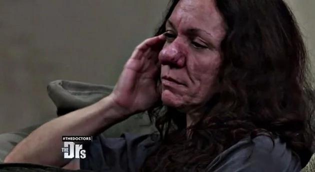 """Mujer """"Pinocho"""" está desesperada por espeluznante enfermedad"""