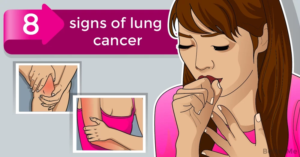 Here are 8 symptoms of lung cancer