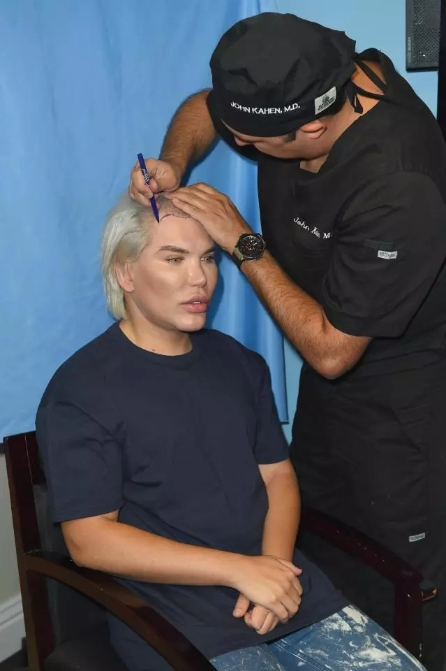 His latest procedure will make his hairline more feminine. Photo: Backgrid