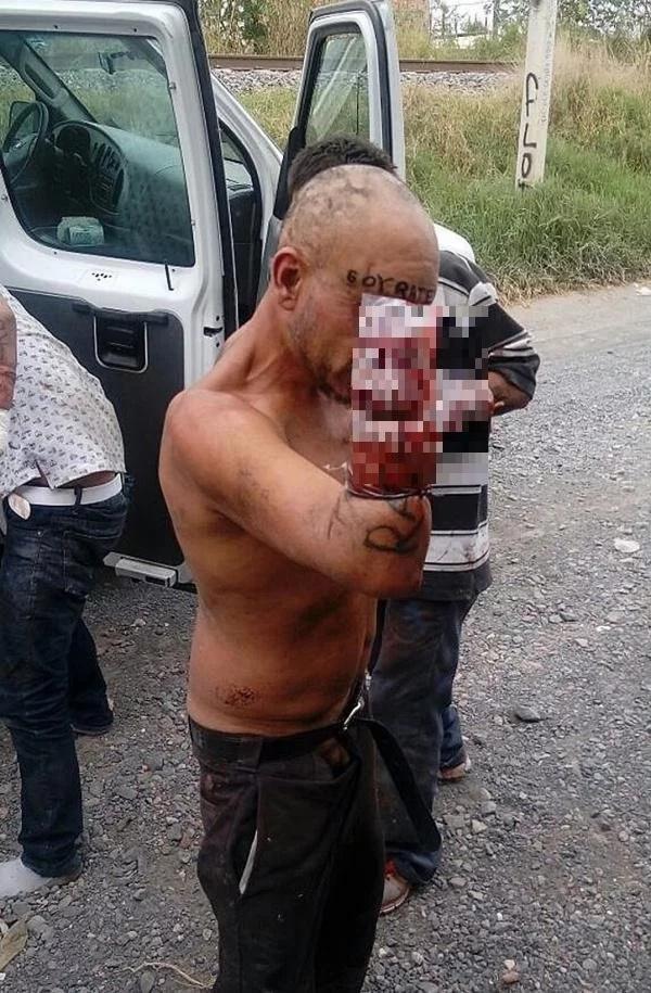 Le mutilaron las manos a 6 personas como castigo por robar