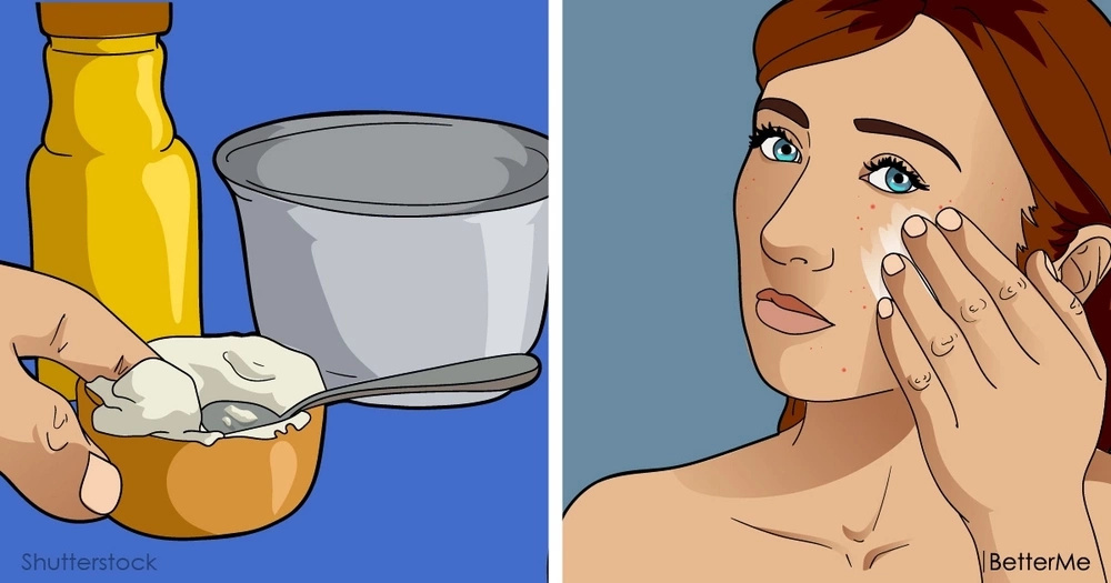 Get rid of acne for good