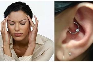 ¿Sufres de migrañas y dolores de cabeza? Un arete en la oreja puede ser la cura