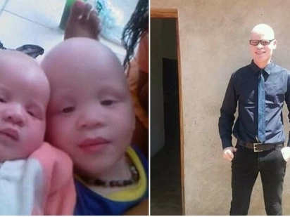 Man with albinism speaks out: They say we're cursed, but they kill us for good luck