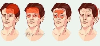 4 tipos de dolores de cabeza que deberías recordar