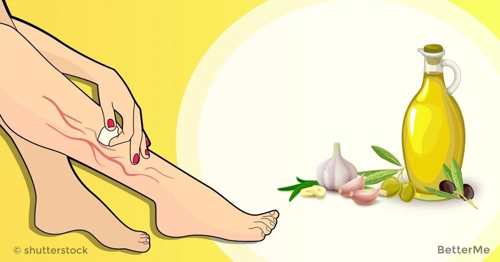Olive oil and garlic can treat varicose veins