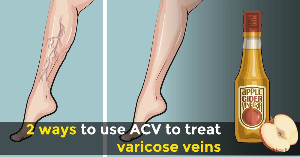 Two methods to treat varicose veins with the help of ACV