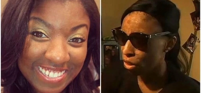Woman, 26, sues drug company after drug BURNED 90% of her skin and left her almost blind (photos, video)
