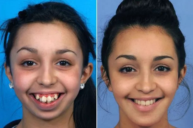 Woman who shows off incredible 'ugly duckling' pic after life-changing facial surgery, says it's worth the year of pain