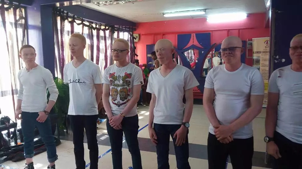 The first ever Mr and Miss Albinism kicks off