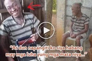 Dumurugo ang puso niya! This man always hides from neighbors because they call him 'aswang.' His heartbreaking story will bring you to tears!