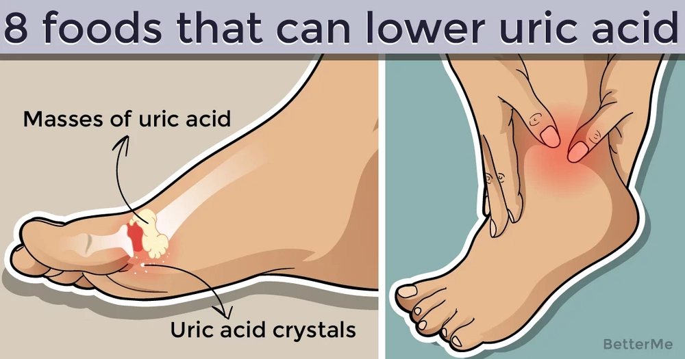 These 8 foods can lower uric acid