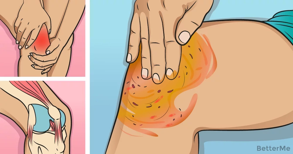This apple cider vinegar and cayenne pepper mixture can heal knee, bone and joint pain