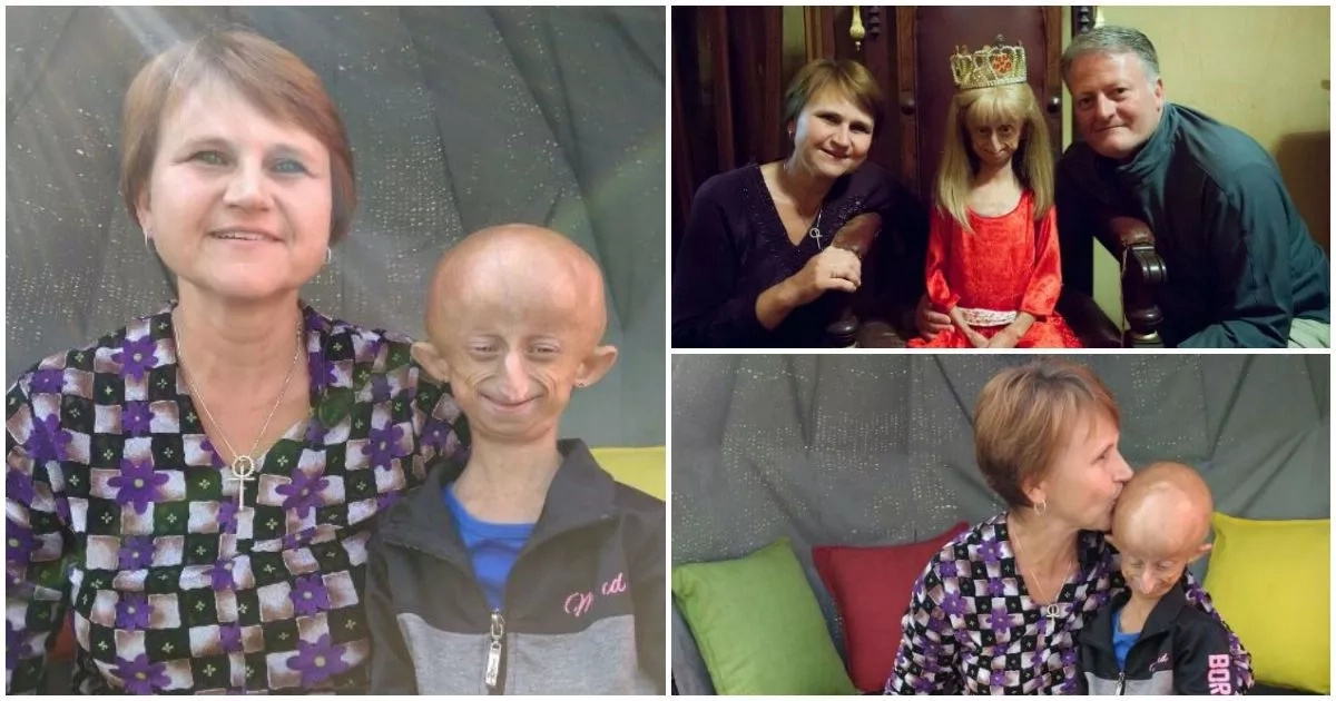 This 11-year-old South African girl wants to be the OLDEST person living with progeria in the world (photos)