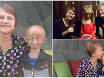 Tiny giant! South African girl, 11, wants to be the OLDEST person living with progeria in the world (photos)