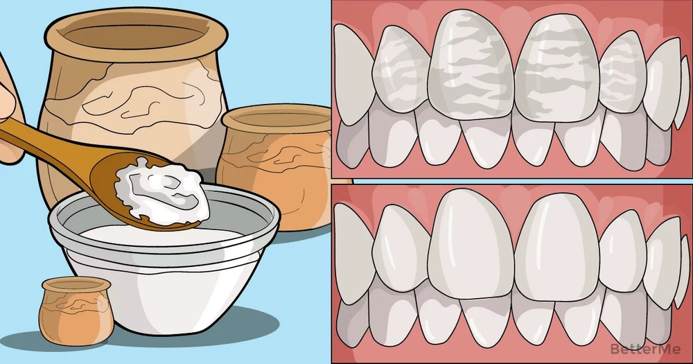 8 foods that can whiten your teeth