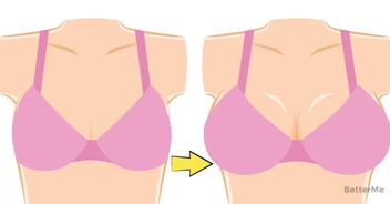 Woman takes off bra for 2 weeks and the results are amazing